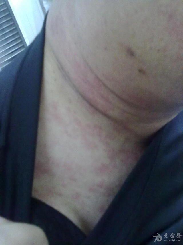 浅表淋巴结肿大的疾病有哪些